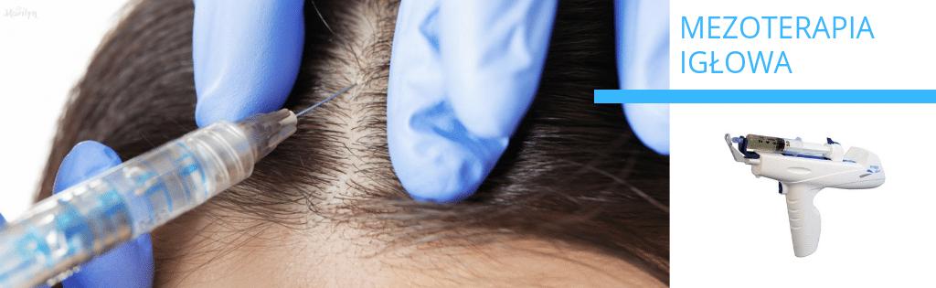 Mezoterapia igłowa głowy